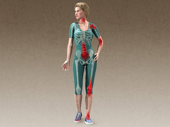 tagmedicina artrosi donna