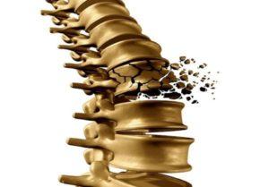 Tagmedicina osteoporosi frattura