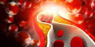 tagmedicina, aterosclerosi