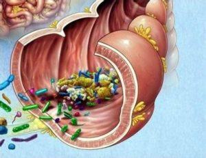 Tagmedicina, disbiosi intestinale