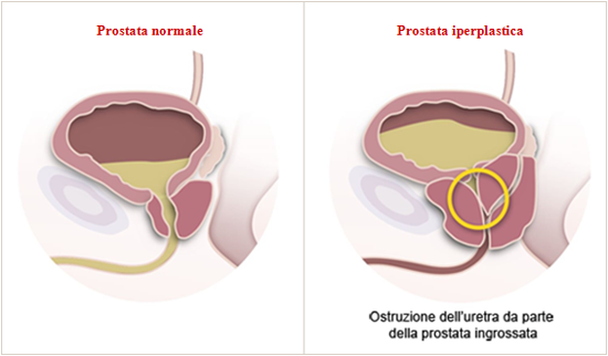 Tagmedicina, ipertrofia prostatica