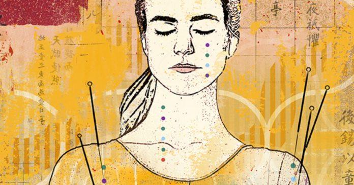 Tagmedicina, agopuntura