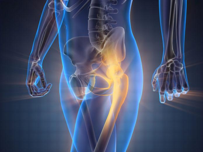 Tagmedicina, osteoporosi
