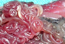tagmedicina,Anisakiasi