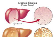 tagmedicina,epatica