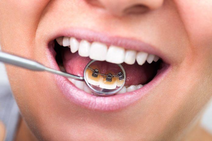 tagmedicina,ortodonzia