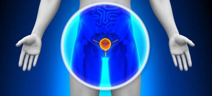 tagmedicina,prostata