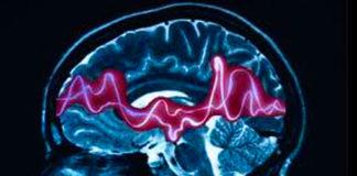 #tagmedicina,epilessia