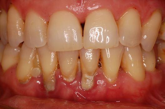 #tagmedicina,parodontale