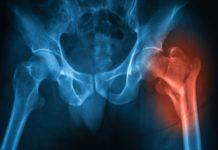 #tagmedicina,osteoporosi