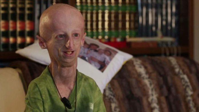 tagmedicina,progeria
