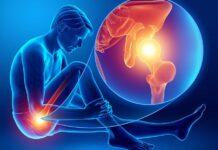 tagmedicina, protesi