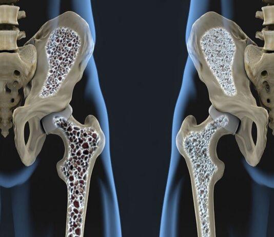 tagmedicina,osteoporotiche