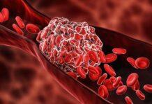 tagmedicina, trombosi